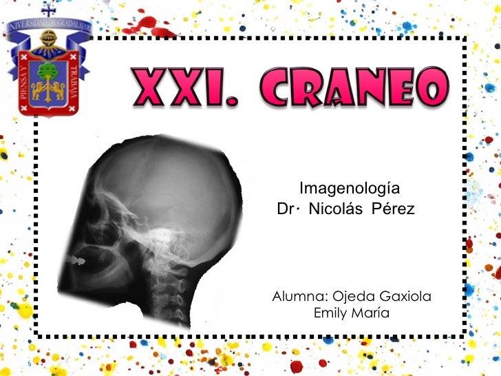 Alumna: Ojeda Gaxiola Emily María Imagenología Dr. Nicolás Pérez