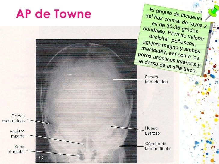 AP de Towne El ángulo de incidencia del haz central de rayos x es de 30-35 grados caudales. Permite valorar occipital, peñ...
