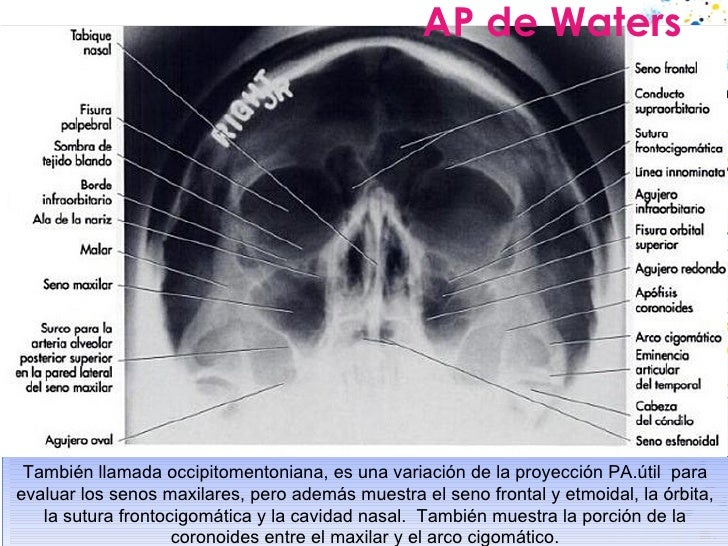 AP de Waters También llamada occipitomentoniana, es una variación de la proyección PA.útil  para evaluar los senos maxilar...