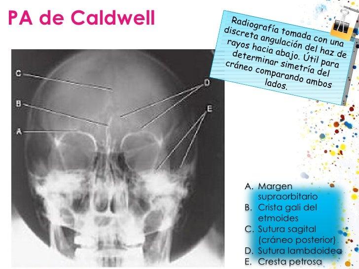 PA de Caldwell Radiografía tomada con una discreta angulación del haz de rayos hacia abajo. Útil para determinar simetría ...