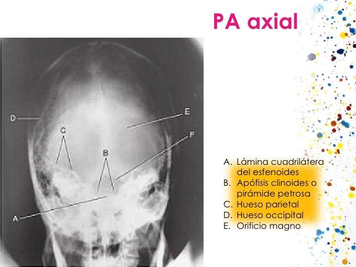 PA axial <ul><li>Lámina cuadrilátera del esfenoides </li></ul><ul><li>Apófisis clinoides o pirámide petrosa </li></ul><ul>...