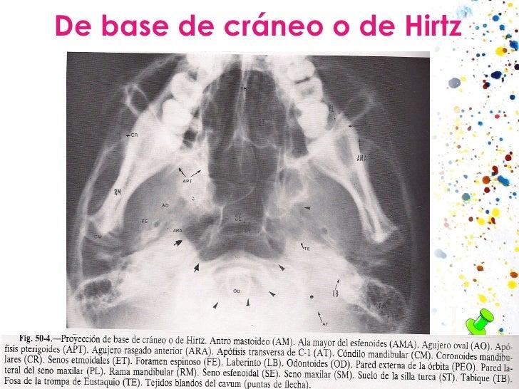 De base de cráneo o de Hirtz El haz de rayos penetra en la base por un punto entre los ángulos de la mandíbula. Es útil pa...