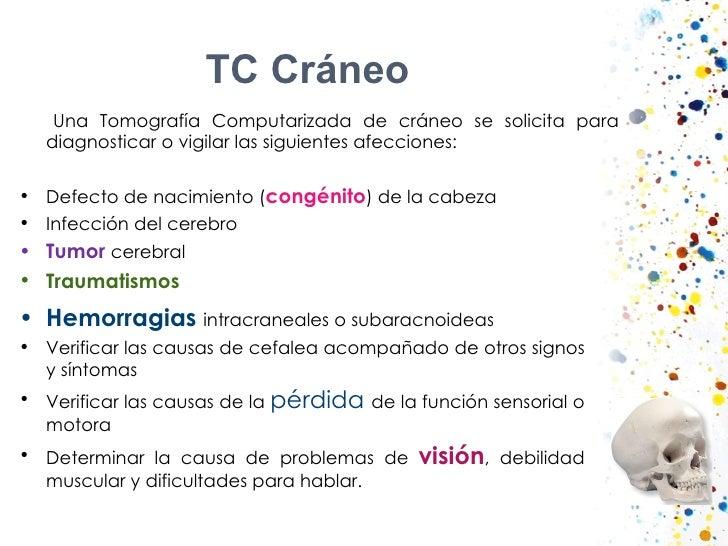 TC Cráneo  <ul><li>Una Tomografía Computarizada de cráneo se solicita para diagnosticar o vigilar las siguientes afeccione...