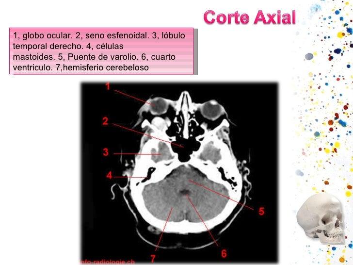 1,globo ocular.2,seno esfenoidal.3,lóbulo temporal derecho.4,células mastoides.5,Puente de varolio.6,cuarto ven...