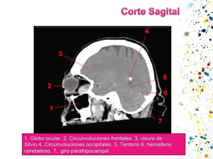 1,Globo ocular.2,Circunvoluciones frontales.3,cisura de Silvio.4,Circunvoluciones occipitales.5,Tentorio6,hemisf...