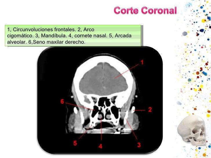1,Circunvoluciones frontales.2,Arco cigomático.3,Mandíbula.4,cornete nasal.5,Arcada alveolar.6,Seno maxilar dere...
