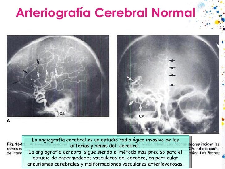 Arteriografía Cerebral Normal La angiografía cerebral es un estudio radiológico invasivo de las arterias y venas del cere...