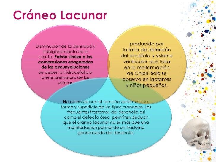 Cráneo Lacunar