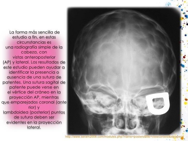 http://www.seram2008.com/modules.php?name=posters&file=viewcontent&idpaper=508&content=2&full=true  La forma más sencilla...