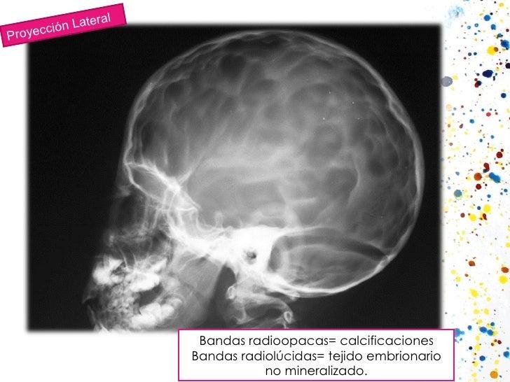 Proyección Lateral Bandas radioopacas= calcificaciones Bandas radiolúcidas= tejido embrionario no mineralizado.