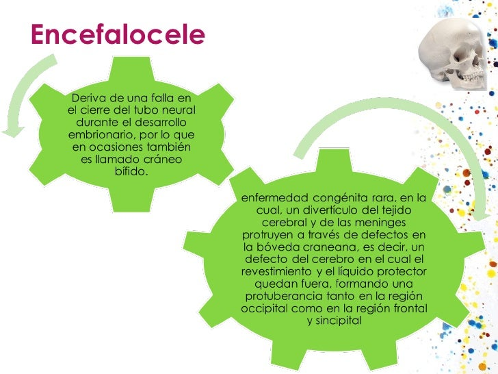 Encefalocele