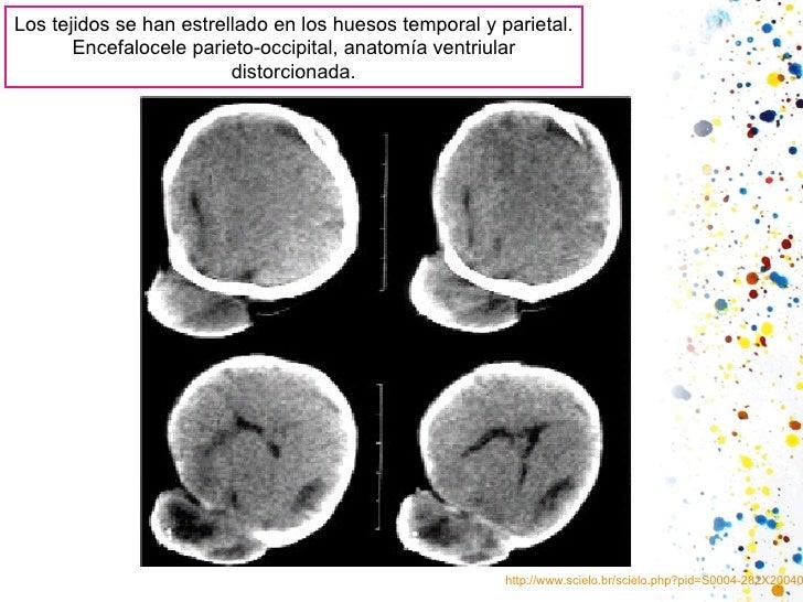 Los tejidosse han estrelladoen los huesostemporal y parietal. Encefalocele parieto-occipital, anatomía ventriular disto...