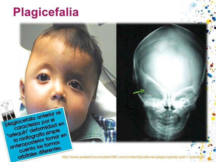 Plagicefalia http://www.pediatricsconsultant360.com/content/positional-plagiocephaly-part-1-practical-guide-evaluation
