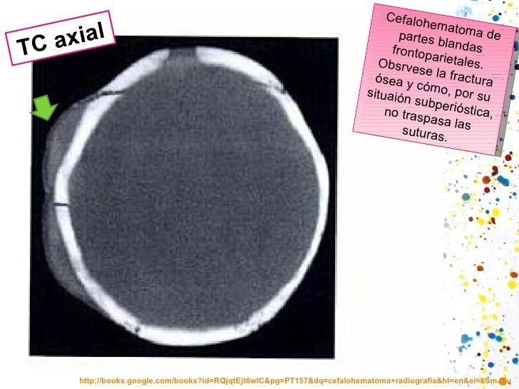 http://books.google.com/books?id=RQjqtEjt6wIC&pg=PT157&dq=cefalohematoma+radiografia&hl=en&ei=8SmJTua_A6eQsALi4NWwDw&sa=X&...