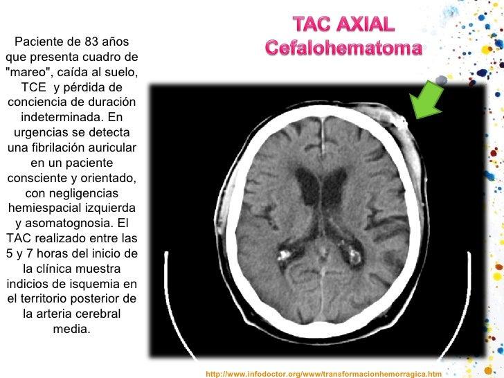 """http://www.infodoctor.org/www/transformacionhemorragica.htm Paciente de 83 años que presenta cuadro de """"mareo"""", ..."""