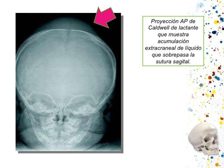 Proyección AP de Caldwell de lactante que muestra acumulación extracraneal de líquido que sobrepasa la sutura sagital.