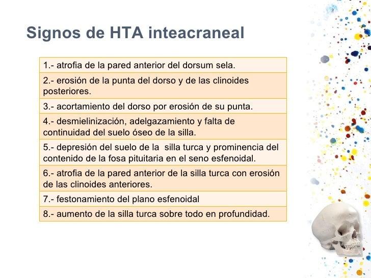 Signos de HTA inteacraneal 1.- atrofia de la pared anterior del dorsum sela. 2.- erosión de la punta del dorso y de las cl...