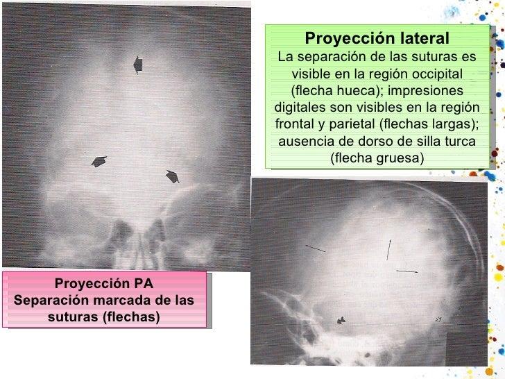 Proyección PA Separación marcada de las suturas (flechas) Proyección lateral La separación de las suturas es visible en la...