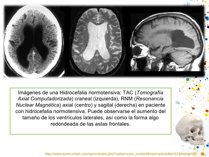 http://www.aemc-chiari.com/aemc/index.php?option=com_content&view=article&id=61&Itemid=93 Imágenes de una Hidrocefalia nor...