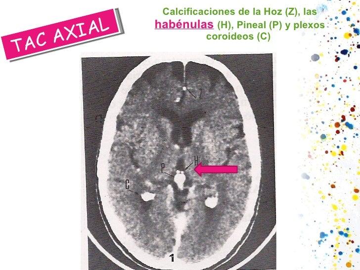 Calcificaciones de la Hoz (Z), las  habénulas   (H), Pineal (P) y plexos coroideos (C)  TAC AXIAL