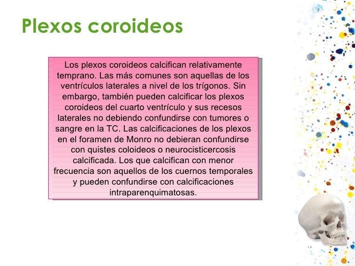 Plexos coroideos Los plexos coroideos calcifican relativamente temprano. Las más comunes son aquellas de los ventrículos l...