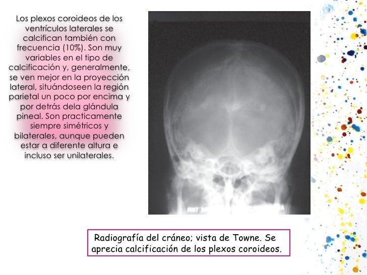 Radiografía del cráneo; vista de Towne. Se aprecia calcificación de los plexos coroideos. Los plexos coroideos de los ve...
