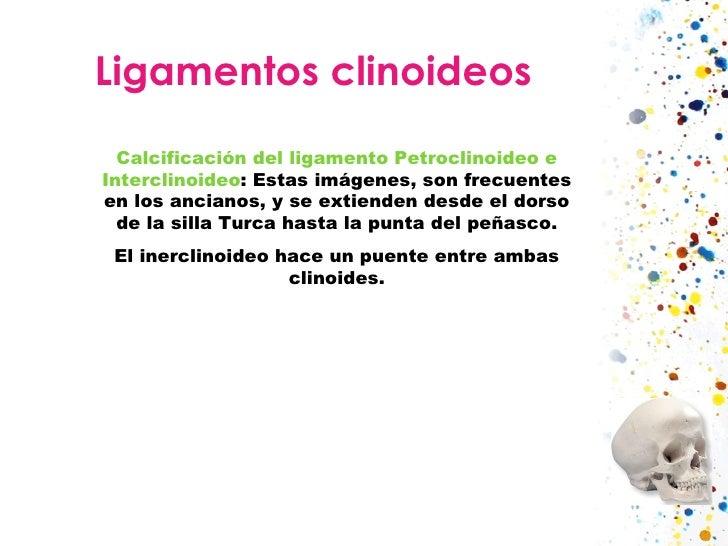 Ligamentos clinoideos Calcificación del ligamento Petroclinoideo e Interclinoideo : Estas imágenes, son frecuentes en los ...