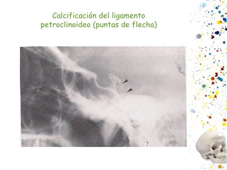 Calcificación del ligamento petroclinoideo (puntas de flecha)