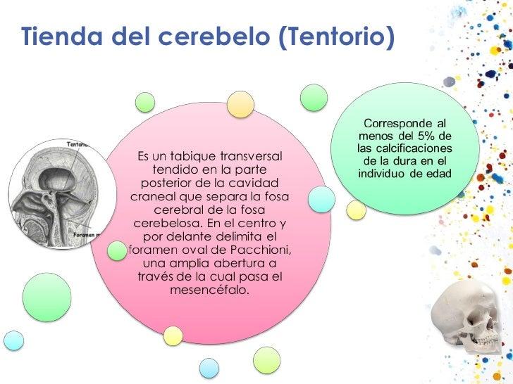 Tienda del cerebelo (Tentorio)