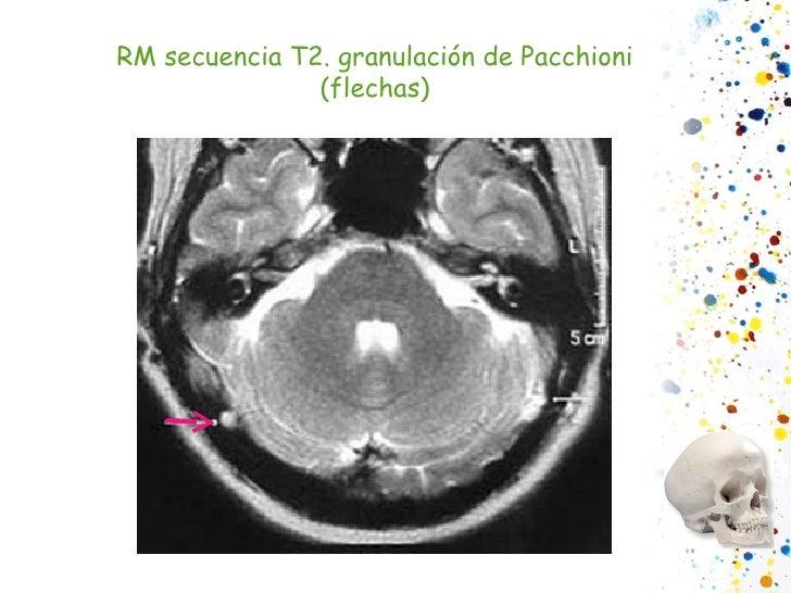 RM secuencia T2. granulación de Pacchioni (flechas)