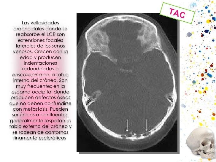 TAC Las vellosidades aracnoidales donde se reabsorbe el LCR son extensiones focales laterales de los senos venosos. Crecen...