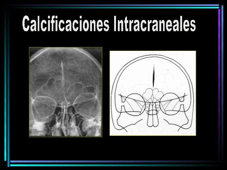 Calcificaciones Intracraneales