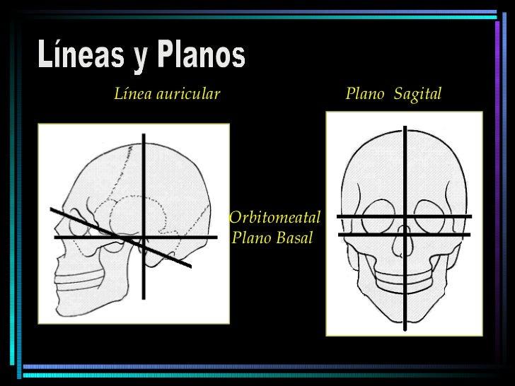 Líneas y Planos Línea auricular  Plano  Sagital Orbitomeatal Plano Basal
