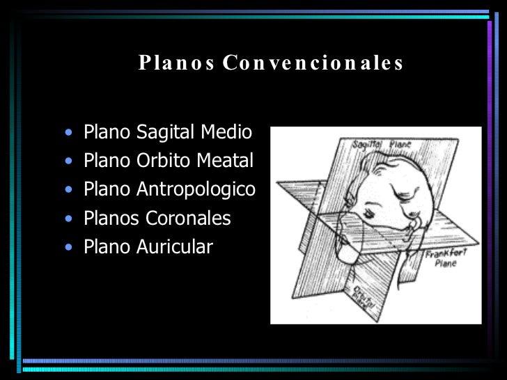 Planos Convencionales  <ul><li>Plano Sagital Medio </li></ul><ul><li>Plano Orbito Meatal </li></ul><ul><li>Plano Antropolo...