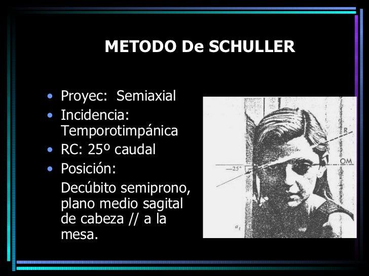 METODO De SCHULLER <ul><li>Proyec:  Semiaxial </li></ul><ul><li>Incidencia: Temporotimpánica </li></ul><ul><li>RC: 25º cau...