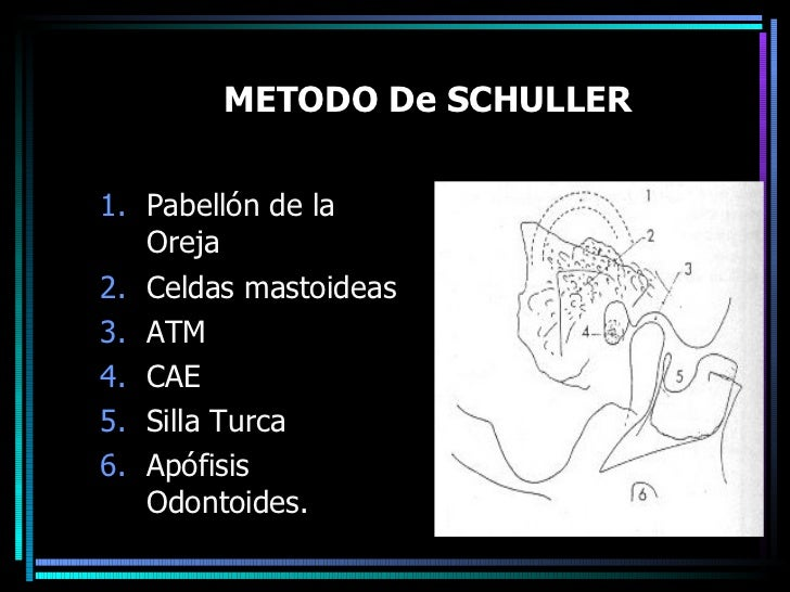 METODO De SCHULLER <ul><li>Pabellón de la Oreja </li></ul><ul><li>Celdas mastoideas  </li></ul><ul><li>ATM </li></ul><ul><...