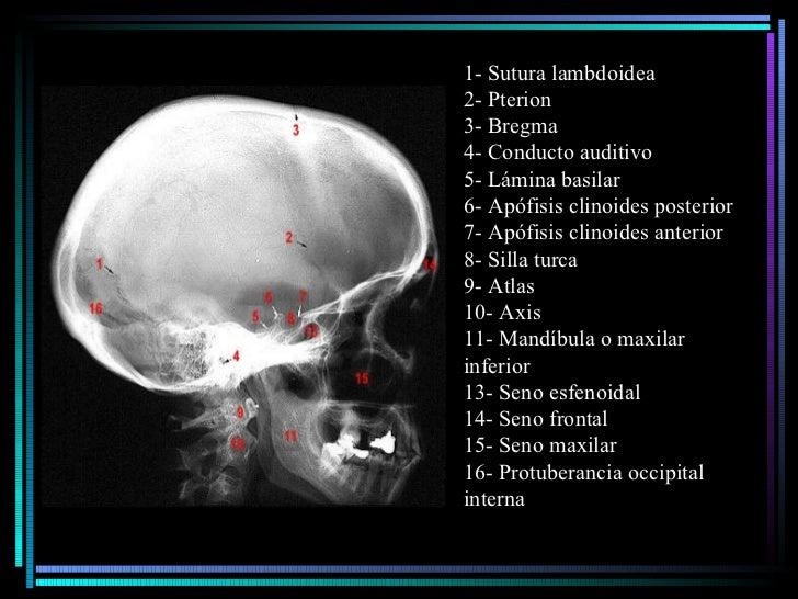 1- Sutura lambdoidea  2- Pterion  3- Bregma  4- Conducto auditivo  5- Lámina basilar  6- Apófisis clinoides posterior 7- A...