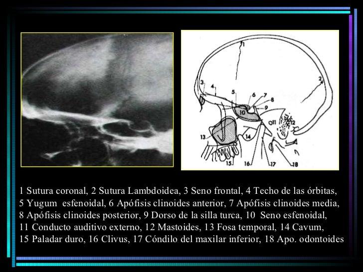 1 Sutura coronal, 2 Sutura Lambdoidea, 3 Seno frontal, 4 Techo de las órbitas,  5 Yugum  esfenoidal, 6 Apófisis clinoides ...