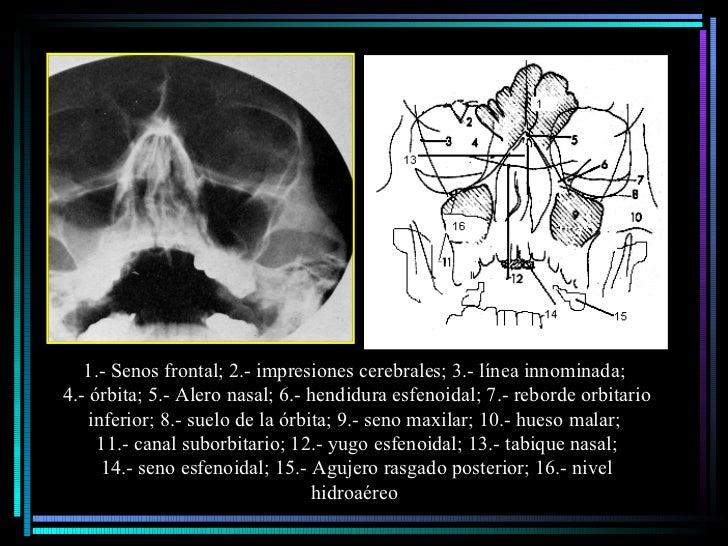 1.- Senos frontal; 2.- impresiones cerebrales; 3.- línea innominada;  4.- órbita; 5.- Alero nasal; 6.- hendidura esfenoida...
