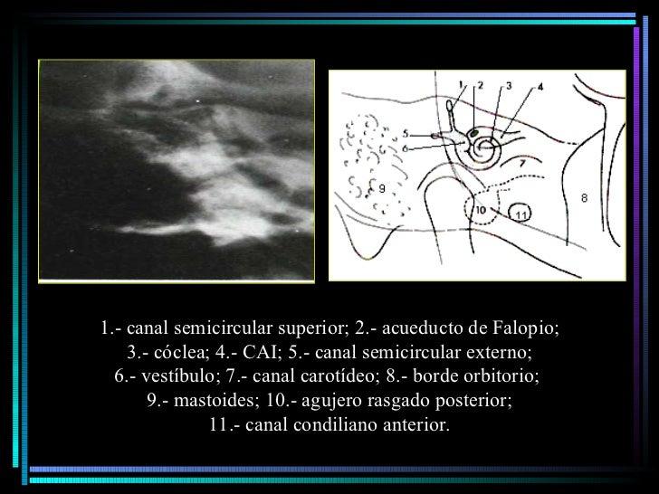 1.- canal semicircular superior; 2.- acueducto de Falopio; 3.- cóclea; 4.- CAI; 5.- canal semicircular externo;  6.- vestí...