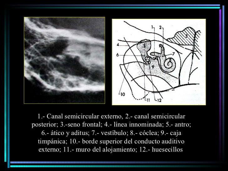1.- Canal semicircular externo, 2.- canal semicircular posterior; 3.-seno frontal; 4.- línea innominada; 5.- antro; 6.- át...