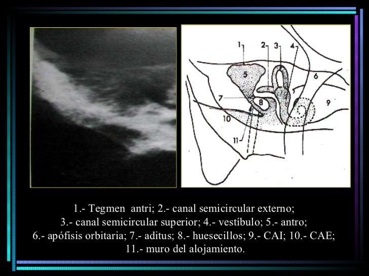 1.- Tegmen  antri; 2.- canal semicircular externo;  3.- canal semicircular superior; 4.- vestíbulo; 5.- antro;  6.- apófis...