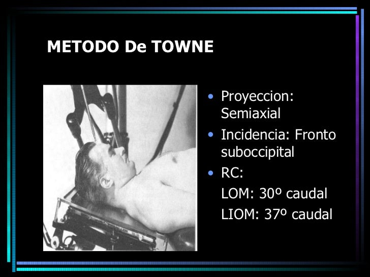METODO De TOWNE <ul><li>Proyeccion: Semiaxial </li></ul><ul><li>Incidencia: Fronto suboccipital  </li></ul><ul><li>RC:  </...