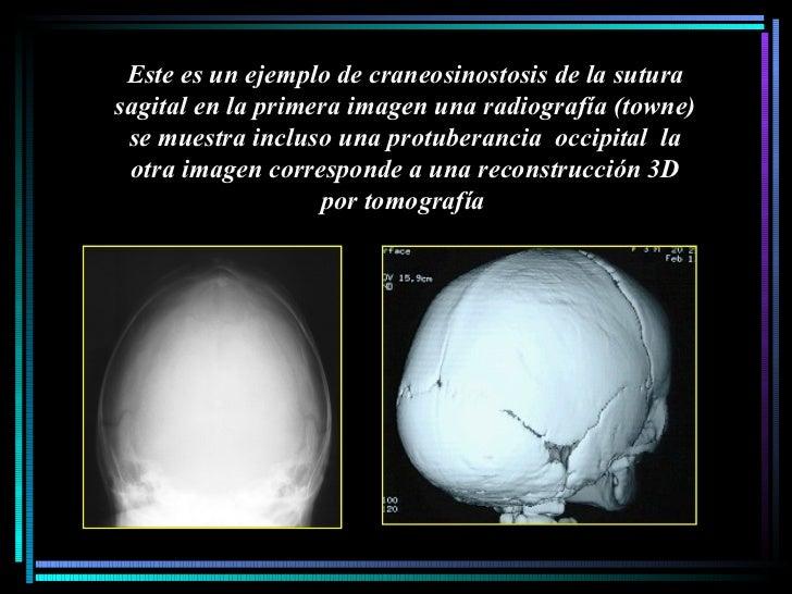 Este es un ejemplo de craneosinostosis de la sutura sagital en la primera imagen una radiografía (towne) se muestra inclus...