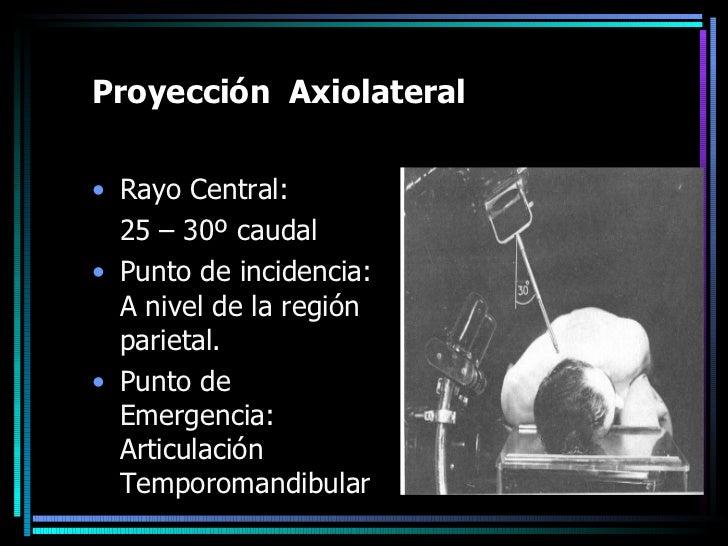 Proyección  Axiolateral <ul><li>Rayo Central: </li></ul><ul><li>25 – 30º caudal </li></ul><ul><li>Punto de incidencia: A n...
