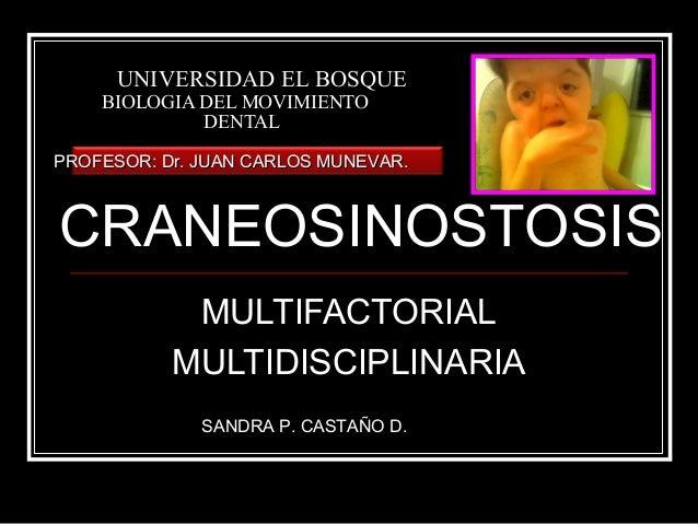 UNIVERSIDAD EL BOSQUE    BIOLOGIA DEL MOVIMIENTO             DENTALPROFESOR: Dr. JUAN CARLOS MUNEVAR.CRANEOSINOSTOSIS     ...