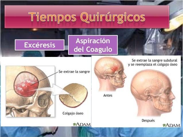 Inmediatas • Daño al tejido cerebral • Infección de la herida, hemorragia, hipertensión endocraneal. Mediatas • Hemorragia...