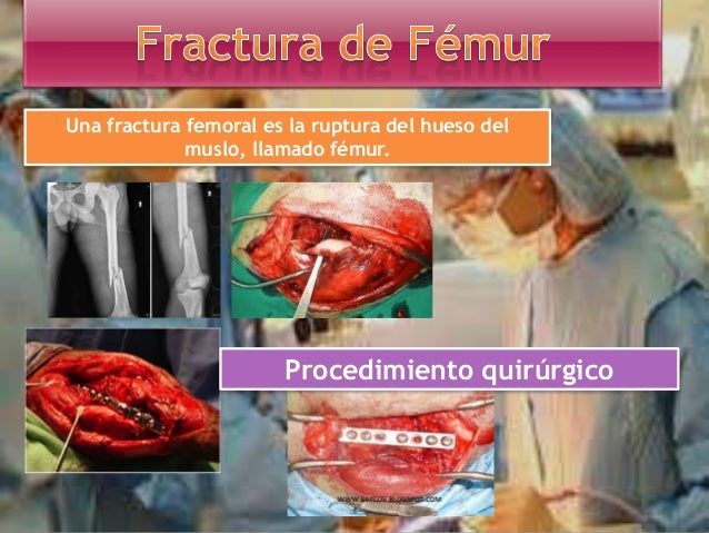 Tratamiento quirúrgico de fracturas, en el que éstas son reducidas y fijadas en forma estable Se implantan diferentes disp...