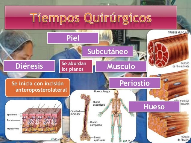 Tromboembolismo Pulmonar. Trombosis venosas profundas Ulceras por Presión Rigidez de la rodilla. Consolidación retardada o...