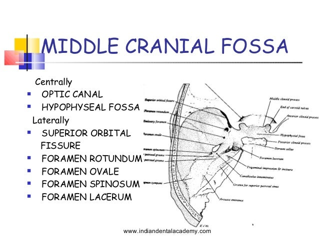 Transtemporal Approaches to Posterior Cranial Fossa | Neupsy Key